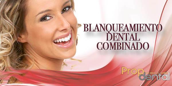blanqueamiento dental combinado
