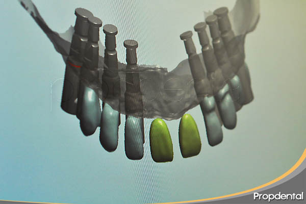 cad cam de implantes dentales