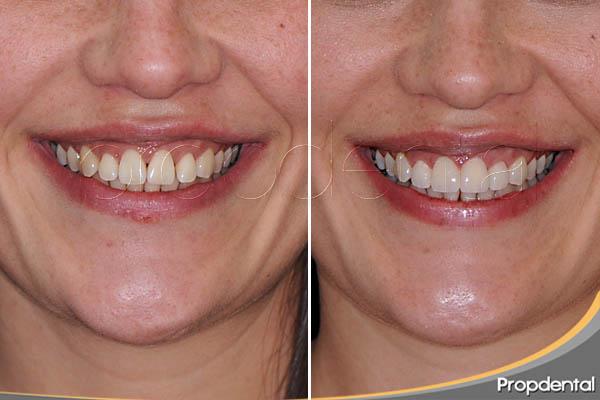 carillas con mínima preparación dental