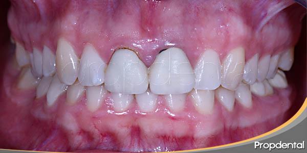 caso clínico antes de la cirugía periodontal