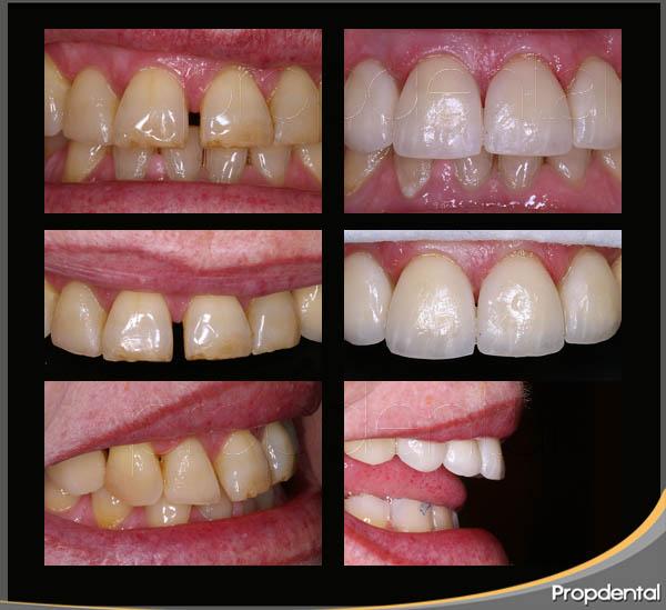 caso clínico de estética dental para cerrar el espacio entre los dientes