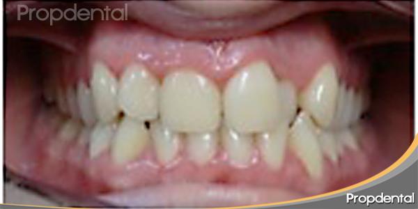 caso de ortodoncia estética