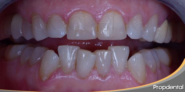 causas y consecuencias de los dientes apiñados