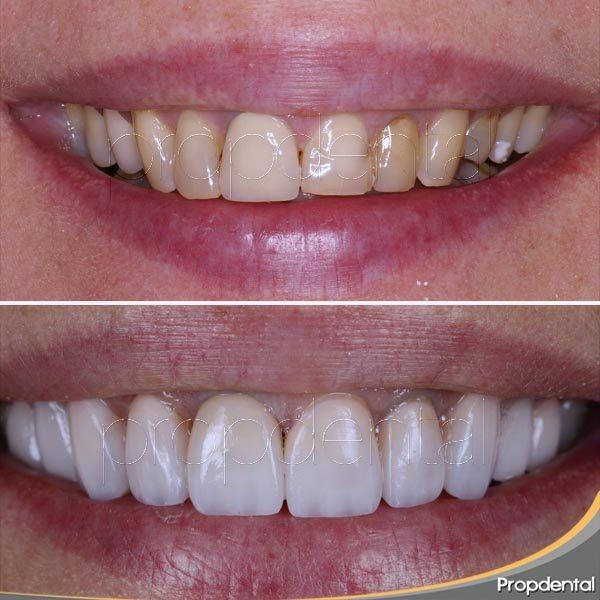 coronas dentales antes y después