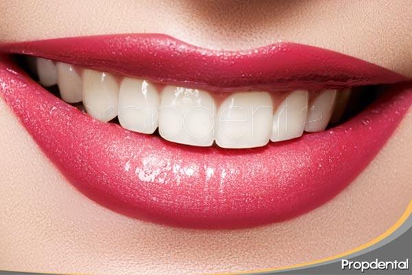 decoloración-en-los-dientes