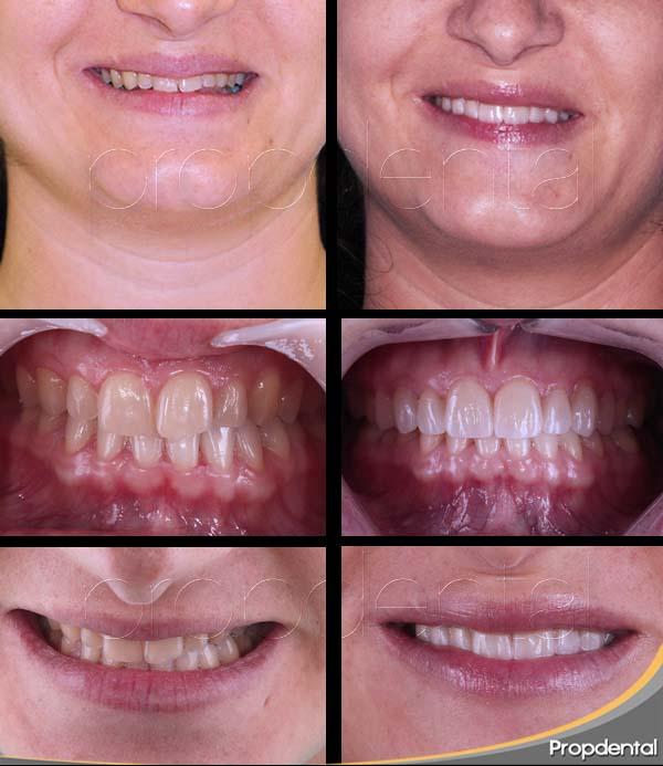dental veneers Barcelona