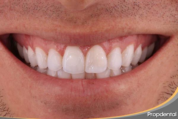 desarrollo de la estética dental