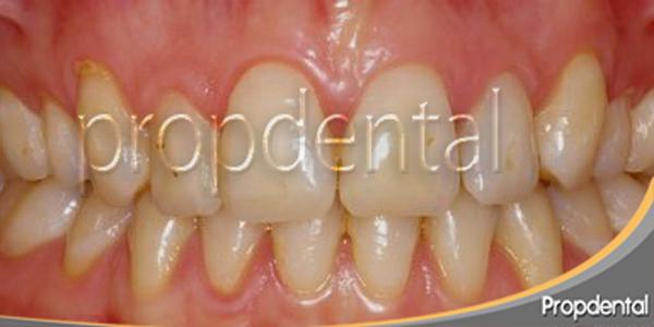 dientes amarillos y malposicionados