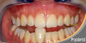 dientes antes del blanqueamiento casero