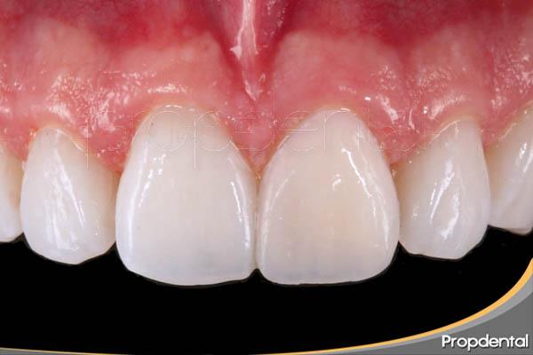 dientes perfectos con carilla sin tallado dental