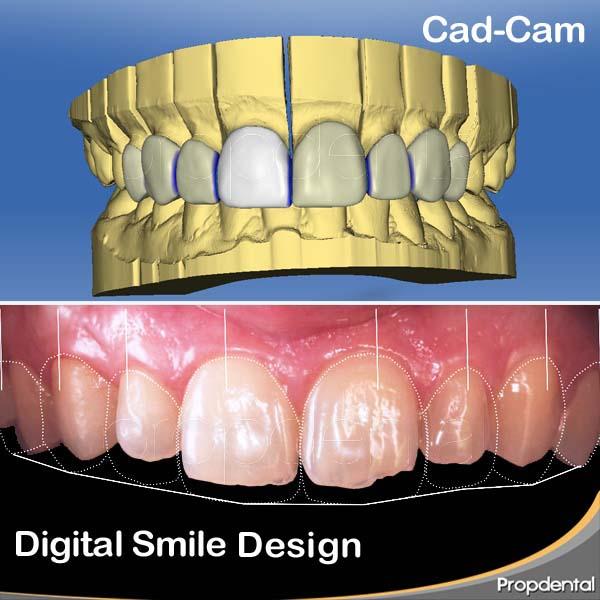 diseño digital de sonrisas