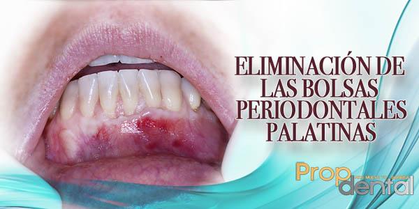 eliminación de las bolsas periodontales palatinas