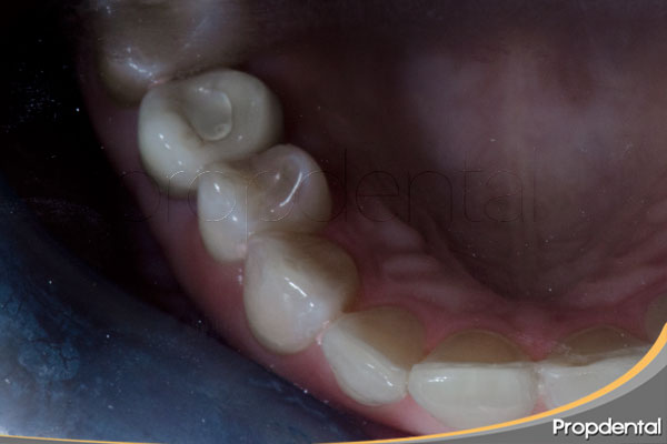 empastes-dentales
