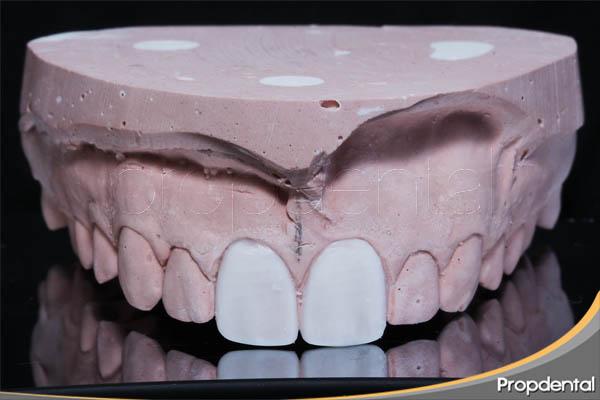 encerado de diagnóstico para las carillas dentales