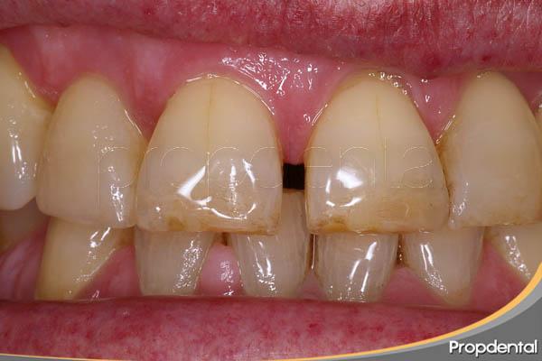 espacio entre los dientes superiores
