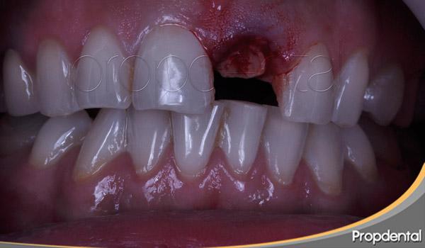 extracción de incisivo central y pérdida del diente anterior
