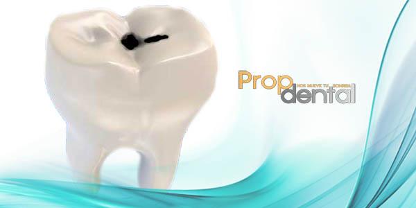 factores de riesgo de la caríes dental