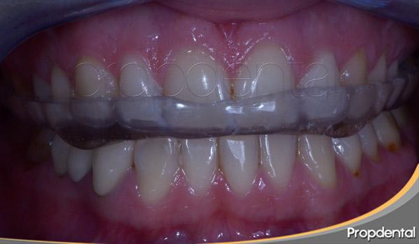 férula dental