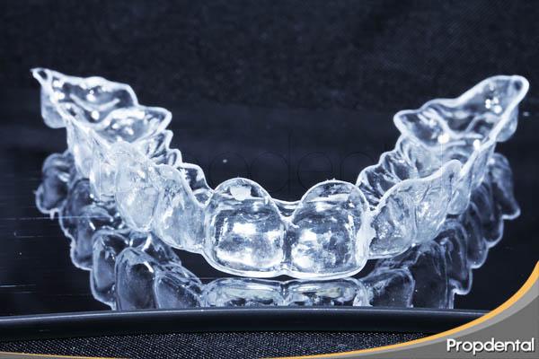 férula quirúrgica para saber cuando se debe alargar el diente