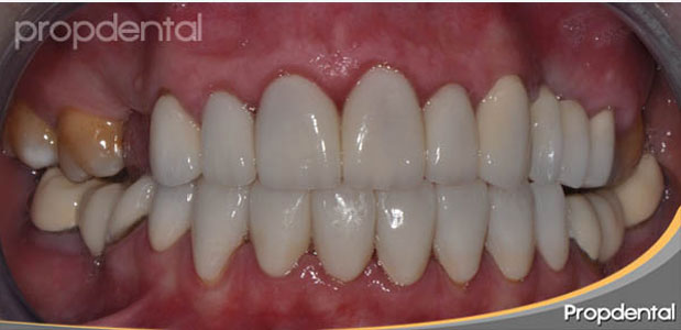 funda-dental