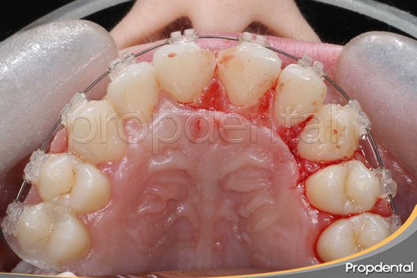 gingivoplastia de papilas