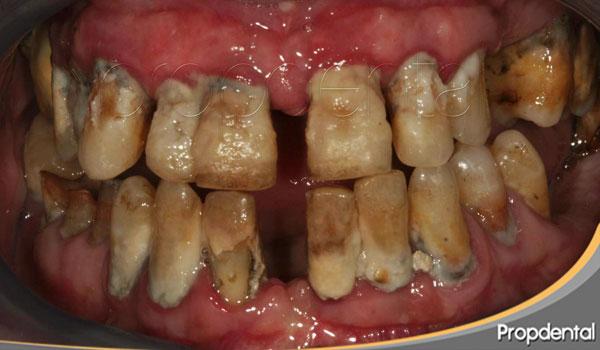 gravedad de la periodontitis