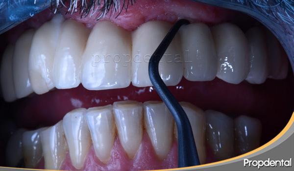 higiene de los implantes dentales