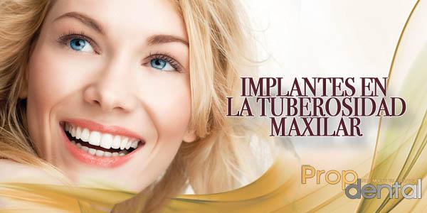 implantes en la tuberosidad maxilar