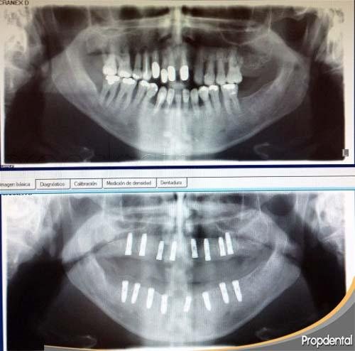 Colocación de implantes dentales en pacientes con periodontitis