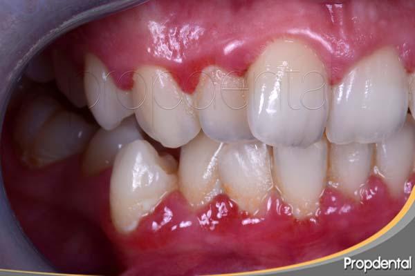 Examen periodontal de la inflamación gingival
