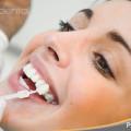 instrucciones para el blanqueamiento dental