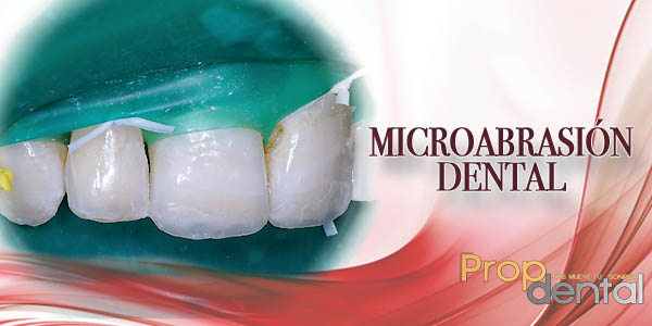 microabrasión dental