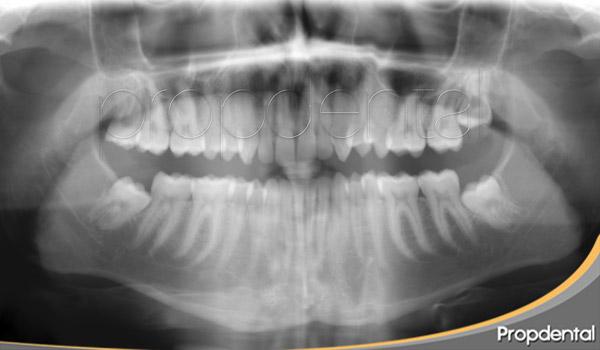 ortopantomografía digital en Propdental