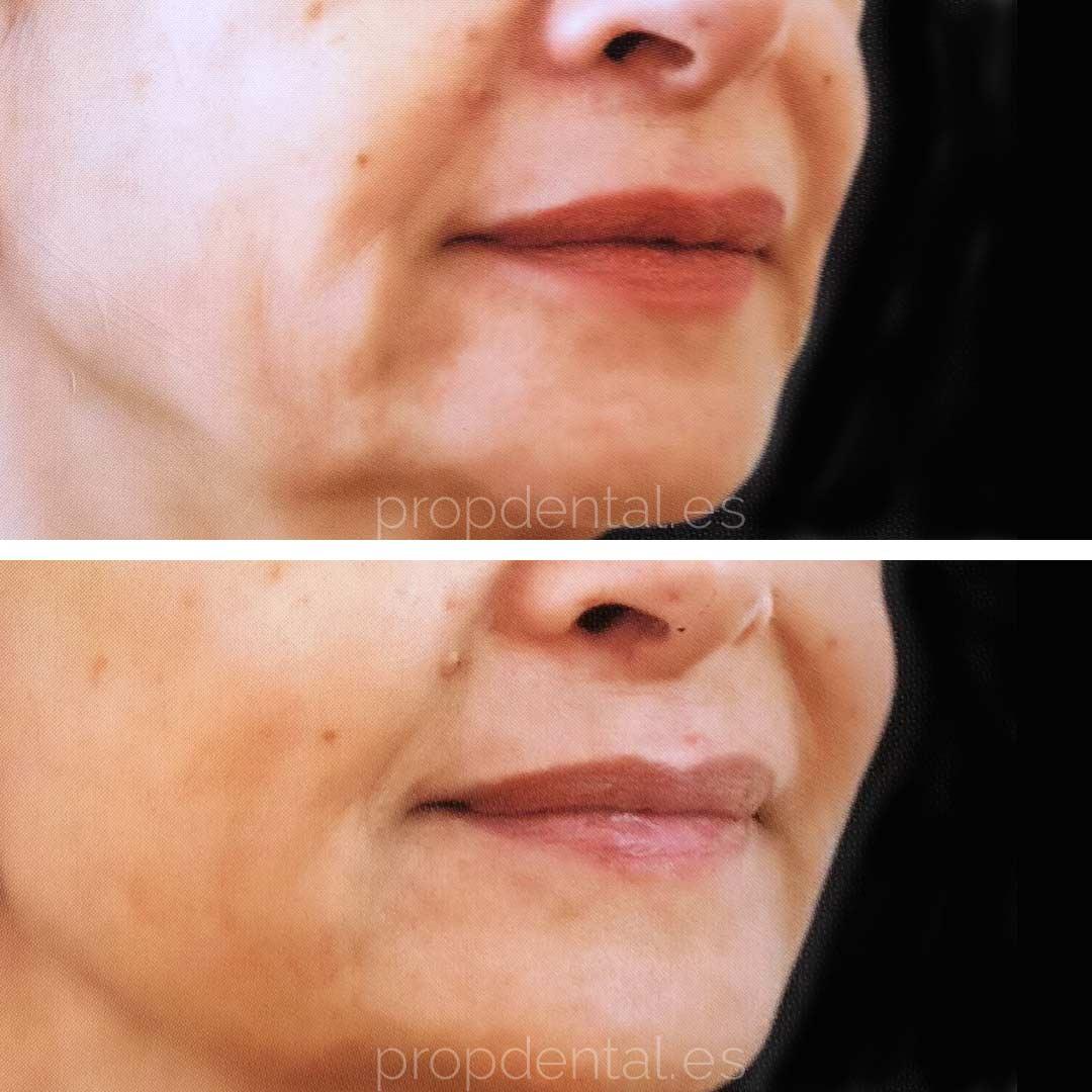 precio acido hialuronico labios barcelona