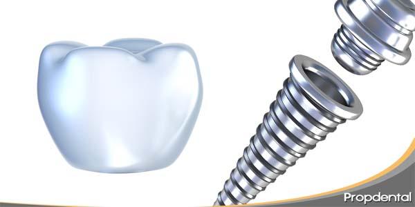 presupuesto de un implante de la pieza 16