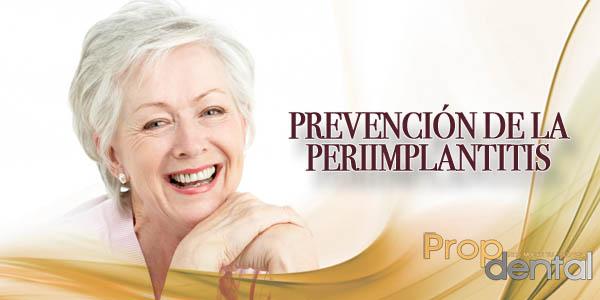 prevención de la periimplantitis