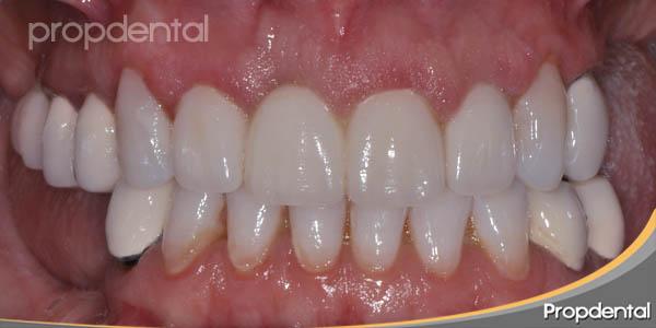 principios biológicos de los tallados para coronas dentales