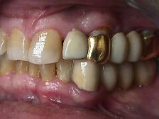 prótesis de oro
