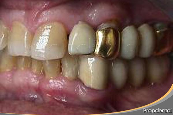 protesis-dentales-de-oro