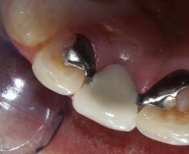 prótesis fija adhesiva
