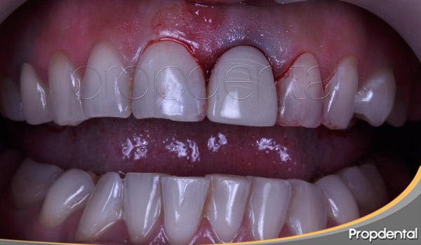 provisional fijo inmediata con colocación en boca del maryland del incisivo