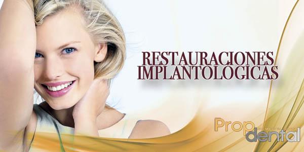 restauraciones implantologícas