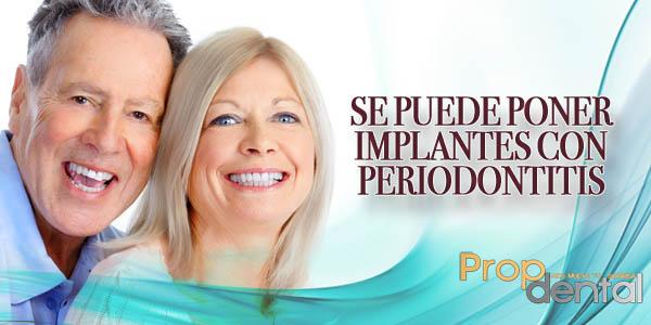 se puede poner implantes con periodontitis