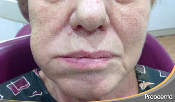 sintomas del flemón dental