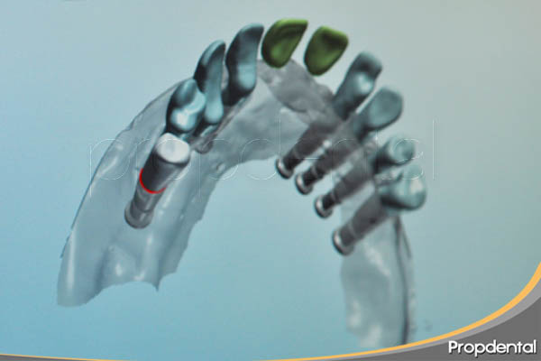 sistema cad cam dental