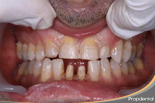 tallado dental