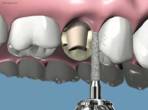 tallados dentales