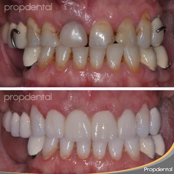 tallados dentales barcelona