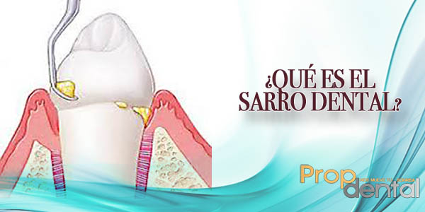 tártaro dental