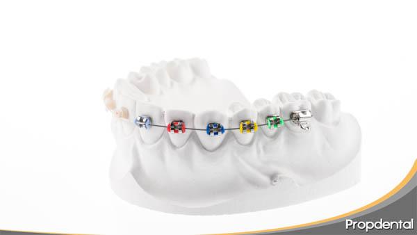 tratamiento de ortodoncia estética a distancia